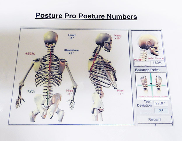 Posture Pro assists our physiotherapists in identifying problem areas, allowing a holistic approach to help you to correct posture.